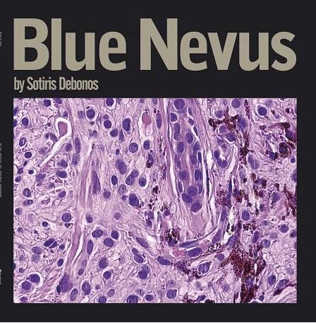 Δεμπόνος, Δεμπόνος Σωτήρης, δισκογραφία, blue nevusdebono, debonos, debono sotiris, blue nevus, discography